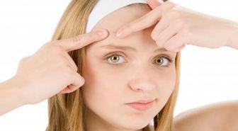 ماسک خانگی برای درمان سریع جوش صورت