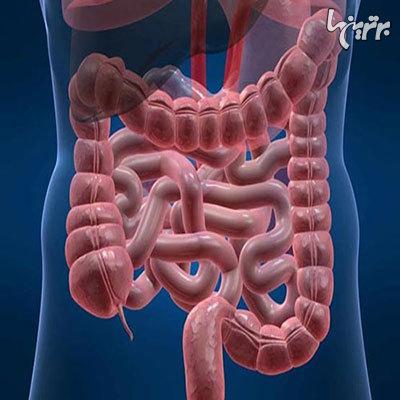 سلامت روده ها را جدی بگیرید - 3