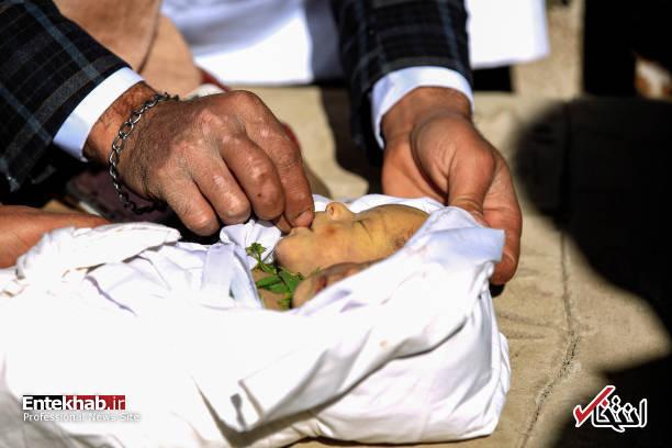 عکس/ دوقلوهای به هم چسبیده یمنی جان باختند - 13