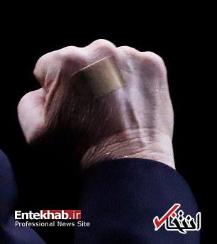 عکس/ زخم دست ترامپ خبرساز شد - 10