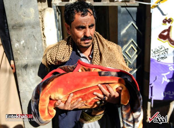 عکس/ دوقلوهای به هم چسبیده یمنی جان باختند - 11