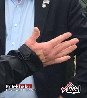 عکس/ زخم دست ترامپ خبرساز شد - 11
