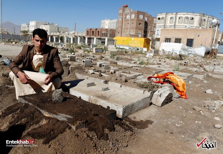 عکس/ دوقلوهای به هم چسبیده یمنی جان باختند - 15