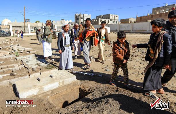 عکس/ دوقلوهای به هم چسبیده یمنی جان باختند - 12