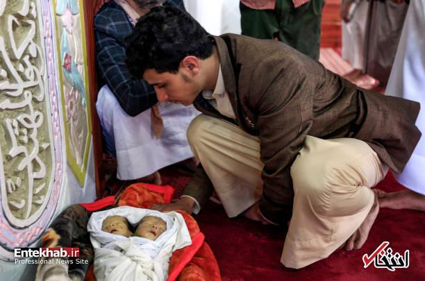 عکس/ دوقلوهای به هم چسبیده یمنی جان باختند - 10