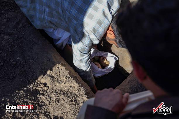 عکس/ دوقلوهای به هم چسبیده یمنی جان باختند - 14