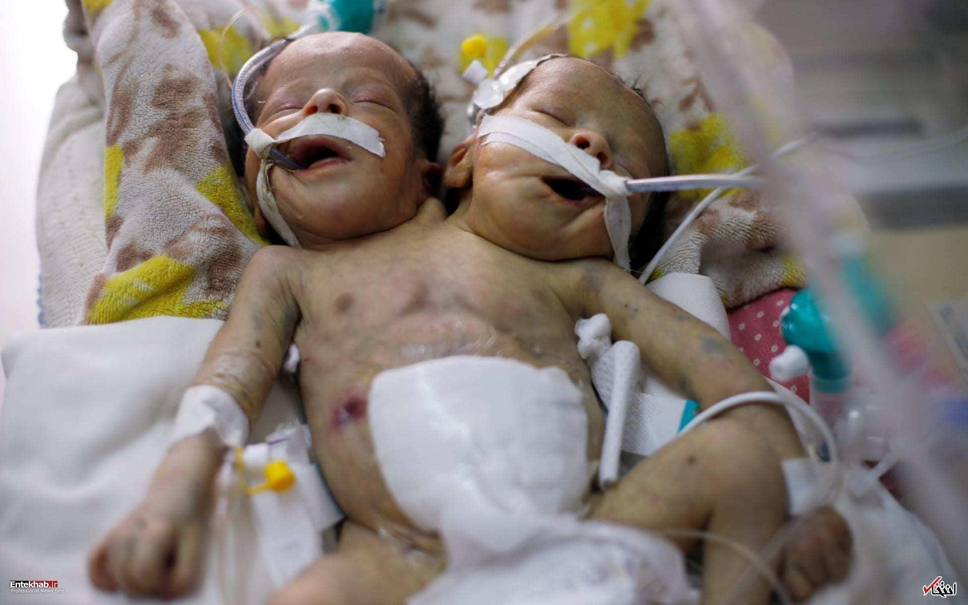 عکس/ دوقلوهای به هم چسبیده یمنی جان باختند - 9