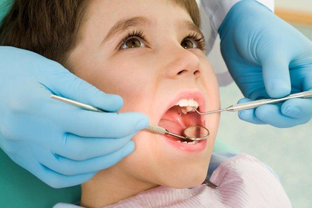 جزییات ارایه خدمات دندانپزشکی رایگان در ۶۰هزار مدرسه