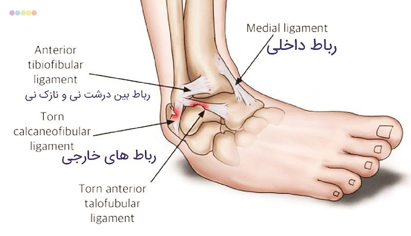 آسیبهای ورزشی| صدمات ناشایع، اما مهم در پیچخوردگی مچ پا - 8