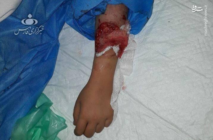 جزییات حمله دو سگ به دختر ۱۰ ساله در لواسان +عکس - 7