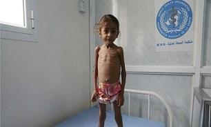 جنایت عربستان در یمن؛ از بستن گذرگاهها تا بروز قحطی و وبا میان چندین میلیون کودک - 4