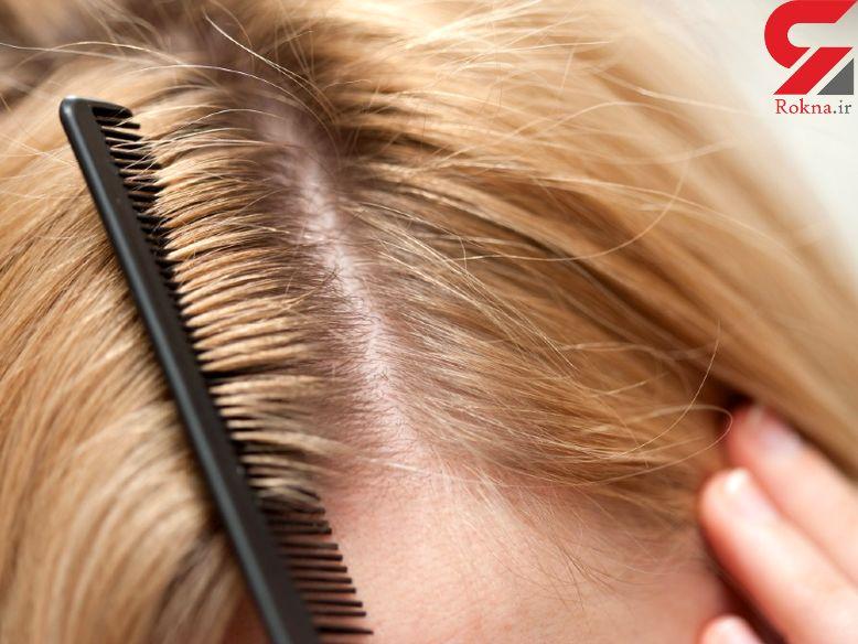 فرار از چربی و شوره موی سر با سادهترین روشها - 1