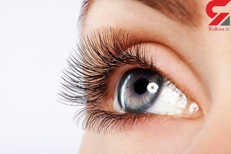 علتهای کاهش بینایی قبل از پیر شدن - 1