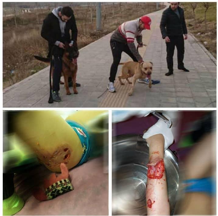 جزئیات حادثه حمله دو سگ به دختر ۱۰ ساله در لواسان + عکس - 9